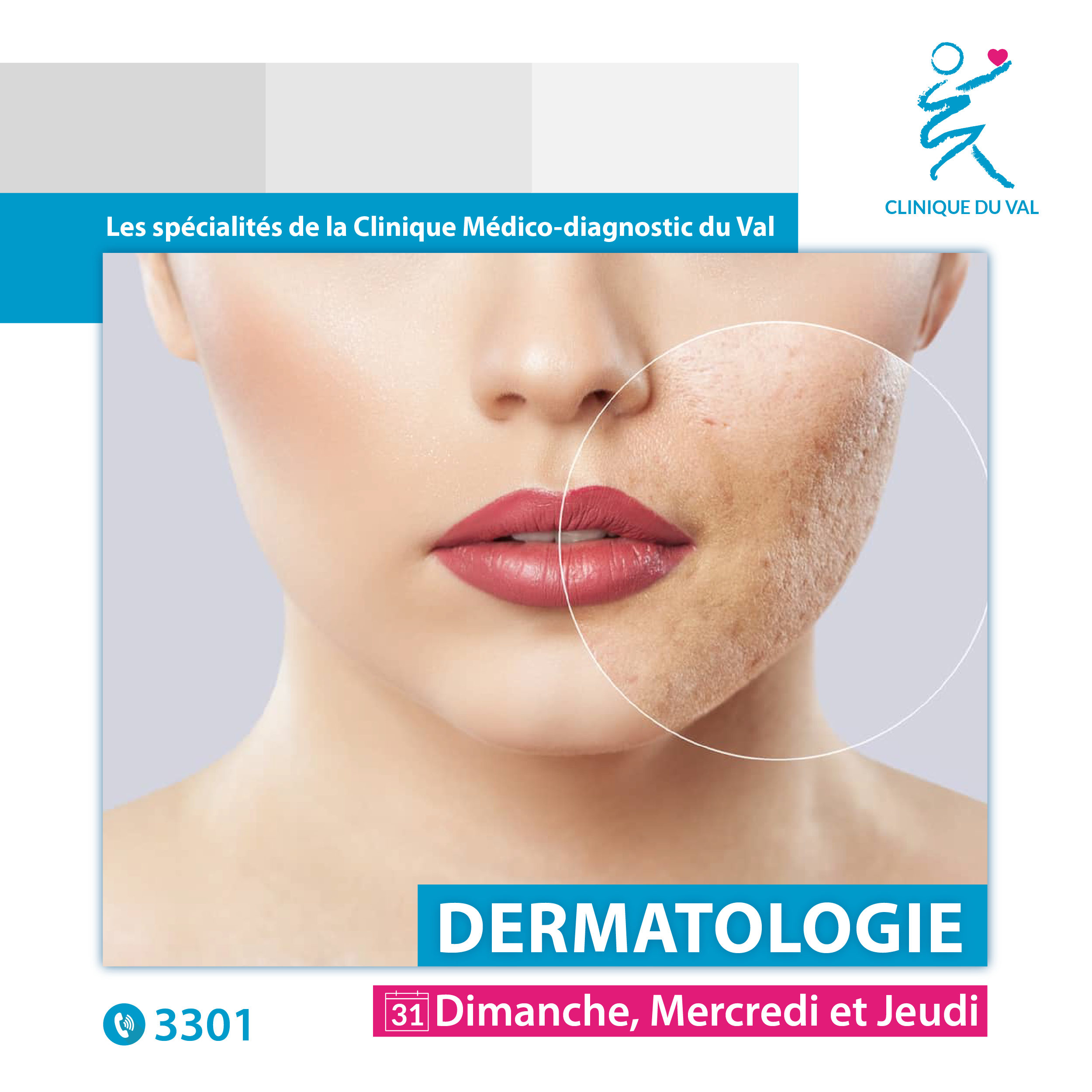 Consultation dermatologie